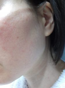 化粧水と乳液を塗った後の肌の状態